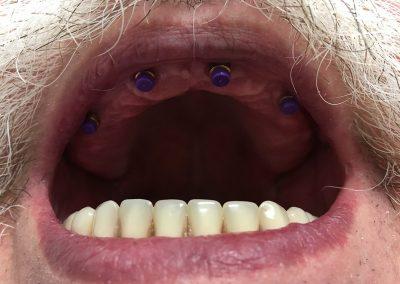 implanty-03